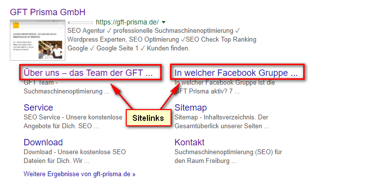 Was sind Sitelinks?